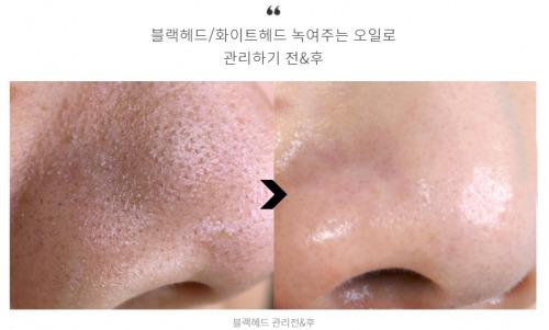 鼻 の 毛穴 皮膚 科